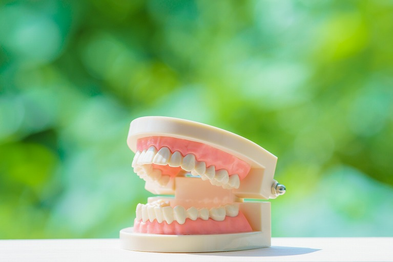 おすすめの入れ歯