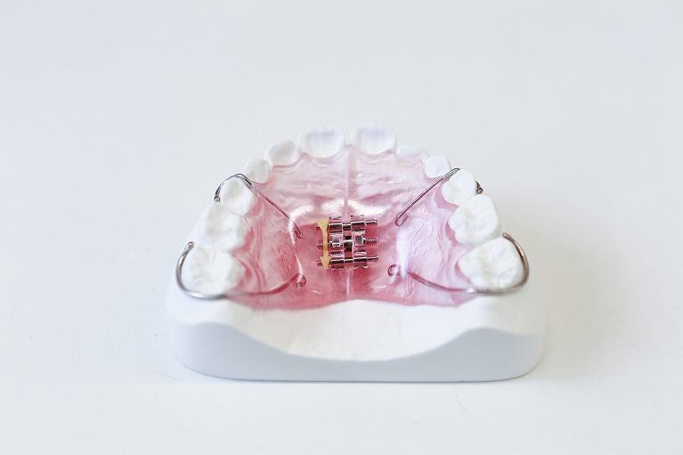 歯科矯正とは
